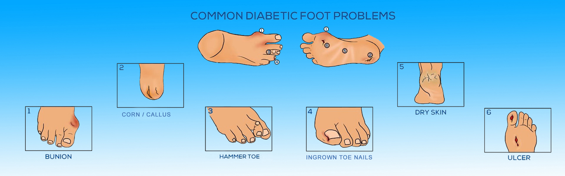 Diabetic Foot Surgeon in Bhopal, India
